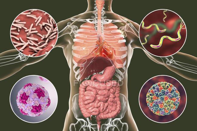 Как избавиться от ротавирусной инфекции